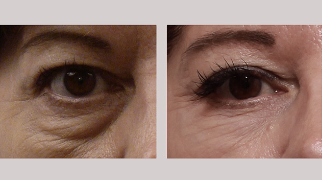 Eyebag removal treatment before and after Dark Eye Circles by Dr Gerard Ee Singapore
