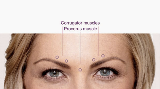 Botox treatment for frown lines Dark Eye Circles by Dr Gerard Ee Singapore