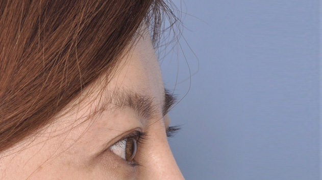 Filler for eyebrow lifting Dark Eye Circles by Dr Gerard Ee Singapore