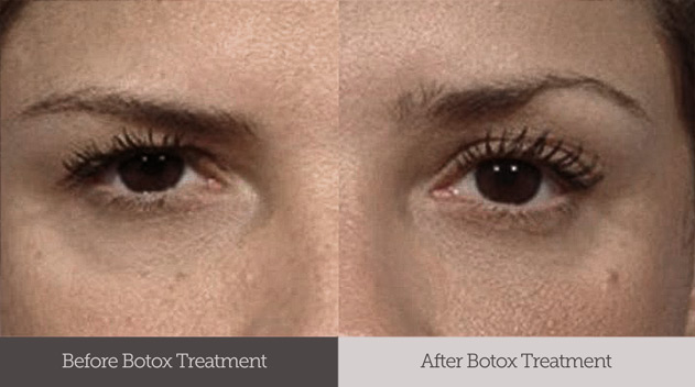 Botox before and after treatment for saggy and droopy eyebrows Dark Eye Circles by Dr Gerard Ee Singapore