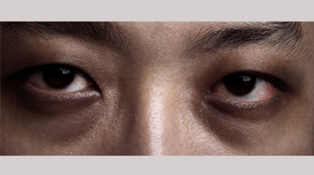 Treatment for severe eyebags causing dark eye circles - Dark Eye Circles by Dr Gerard Ee Singapore
