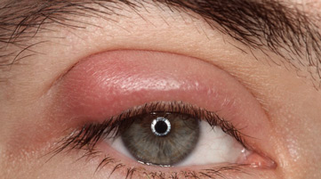 side effects of mascara usage swollen eyelids Dark Eye Circles by Dr Gerard Ee Singapore
