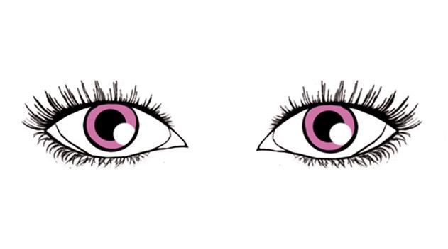 almond shaped eyes - Dark Eye circles by Dr Gerard Ee Singapore