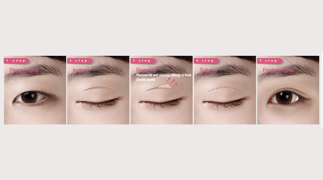 Incisional Double Eyelid creation - Dark Eye Circles by Dr Gerard Ee Singapore