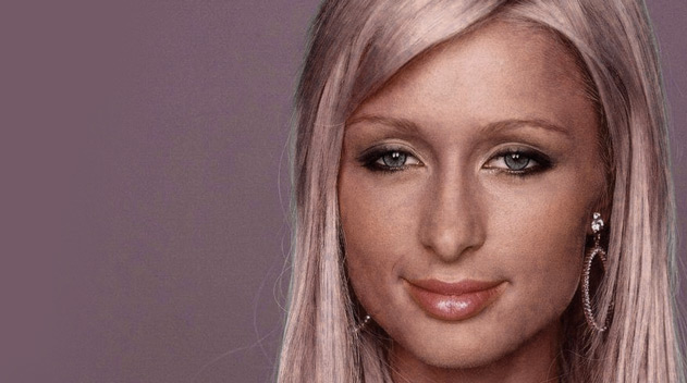 Paris Hilton with Droopy shaped eyes - Dark Eye circles by Dr Gerard Ee Singapore