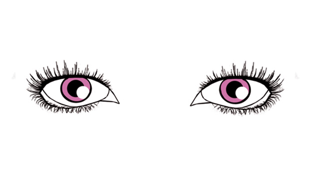 Droopy shaped eyes - Dark Eye circles by Dr Gerard Ee Singapore