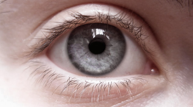 high height double eyelids - Dark Eye Circles by Dr Gerard Ee Singapore