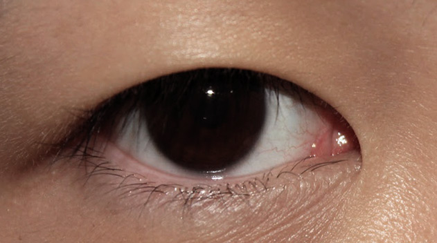 Low height or hidden double eyelids - Dark Eye Circles by Dr Gerard Ee Singapore
