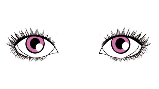 roundish almond shaped eyes - Dark Eye circles by Dr Gerard Ee Singapore