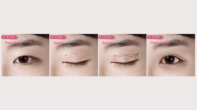Scarless Double Eyelid creation - Dark Eye Circles by Dr Gerard Ee Singapore