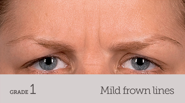 grade your frown line mild frown line dynamic movement - Dark Eye Circles by Dr Gerard Ee Singapore
