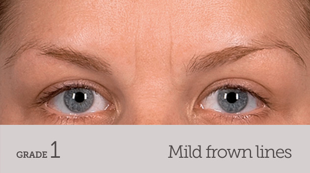 grade your frown line mild frown line no movement - Dark Eye Circles by Dr Gerard Ee Singapore