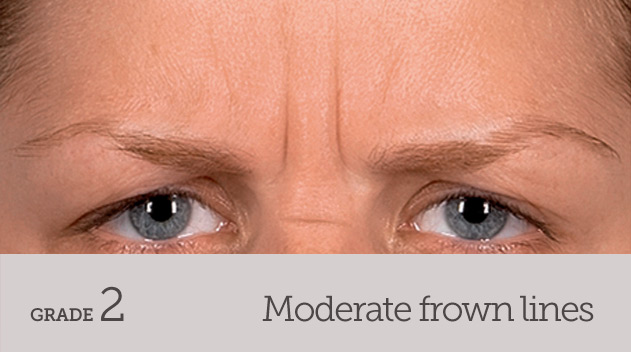 grade your frown line moderate frown line dynamic movement - Dark Eye Circles by Dr Gerard Ee Singapore