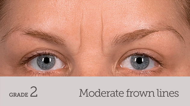 grade your frown line moderate frown line no movement - Dark Eye Circles by Dr Gerard Ee Singapore