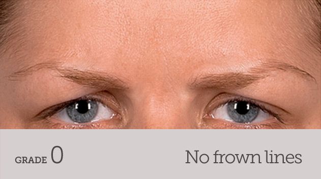 grade your frown line no frown line dynamic movement - Dark Eye Circles by Dr Gerard Ee Singapore