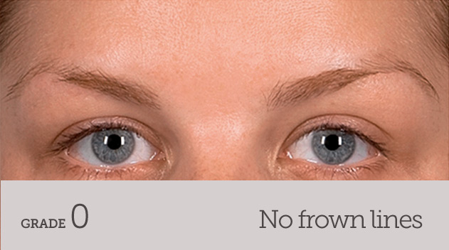 grade your frown line no frown line no movement - Dark Eye Circles by Dr Gerard Ee Singapore