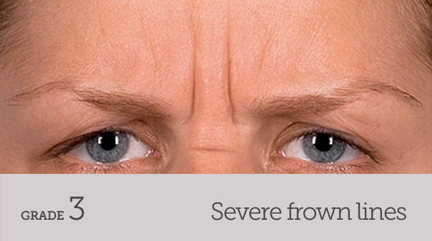 grade your frown line severe frown line dynamic movement - Dark Eye Circles by Dr Gerard Ee Singapore