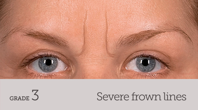 grade your frown line severe frown line no movement - Dark Eye Circles by Dr Gerard Ee Singapore
