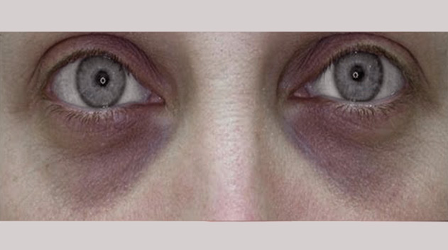 Loss of fat and muscle volume giving rise to sunken looking eyes - Dark Eye Circles by Dr Gerard Ee Singapore