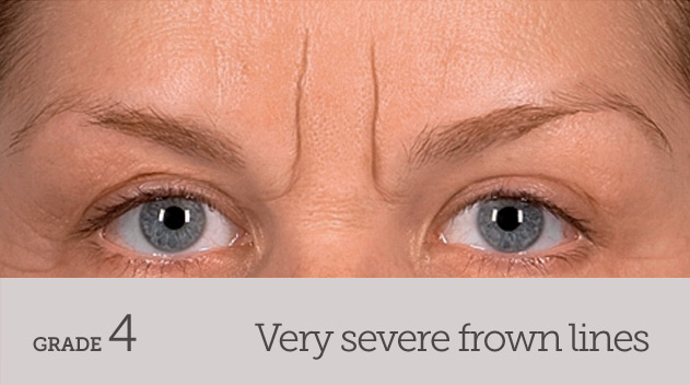 grade your frown line very severe frown line no movement - Dark Eye Circles by Dr Gerard Ee Singapore